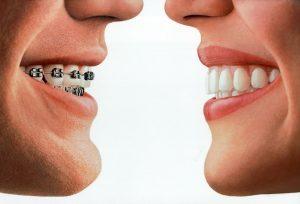 τοποθέτηση-σιδεράκια-οδοντίατρος-θεσσαλονίκη